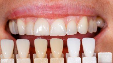 Photo of ونیر کامپوزیت دندان در مقابل ونیر یا لمینت دندان چینی چه تفاوتی دارند؟