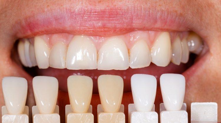 ونیر کامپوزیت دندان در مقابل ونیر دندان چینی، چه تفاوتی دارند؟
