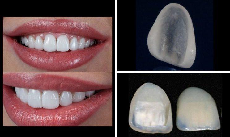 تمام چیزهایی که باید در مورد ونیر دندان چینی بدانید
