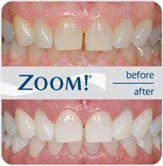 بلیچینگ دندان خیره کننده Zoom Whitening در یک ساعت