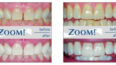 Photo of سفید کردن دندان در مطب یک ساعته با بلیچینگ دندان خیره کننده Zoom