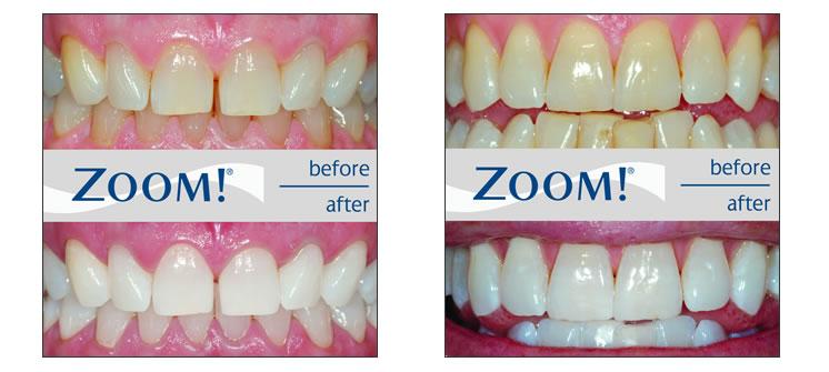 روش دندانپزشکی بلیچینگ دندان خیره کننده Zoom Whitening در یک ساعت