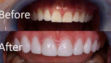 Photo of تمام چیزهایی که باید در مورد ونیر یا لمینت دندان چینی بدانید