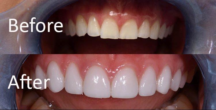 تمام چیزهایی که باید در مورد ونیر یا لمینت دندان چینی بدانید