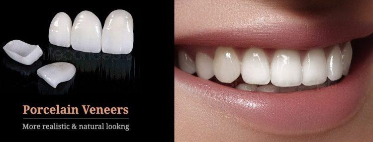 تمام چیزهایی که باید در مورد اتصال دادن ونیر دندان چینی روی دندانها بدانید
