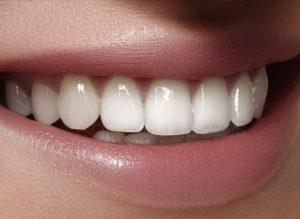 نمونه لمینت سرامیک-چینی دندانها