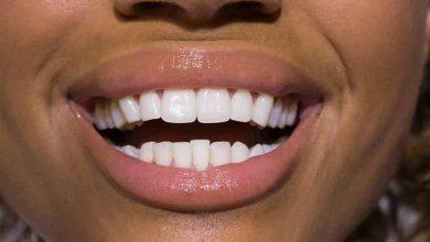Photo of سفید کردن دندان ها با روش خانگی OTC،تری ها/ لیزر و ژل دندانپزشکی