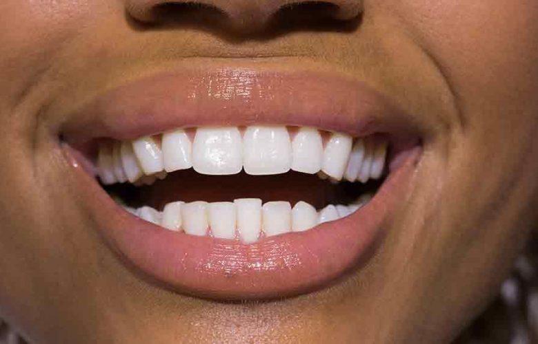 همه چیز درباره سفید کردن دندان با روش بدون نسخه OTC و دندانپزشکی