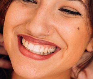 چیز هایی که باید در مورد سفید کردن دندان در مطب خیره کننده Zoom Whitening بدانید.