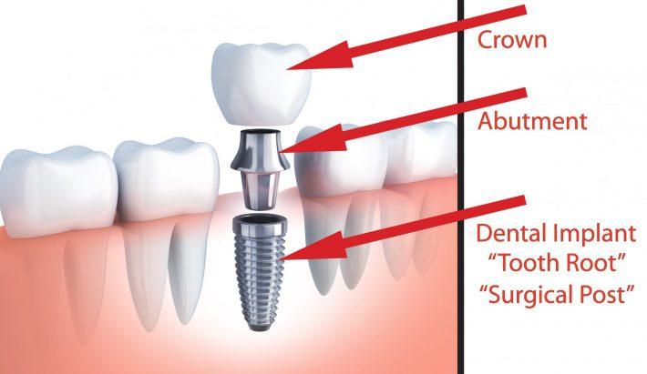 سوالات ایمپلنت دندانی و پاسخ ارائه شده توسط هیات علمی و دندانپزشکان متخصص واجد شرایط