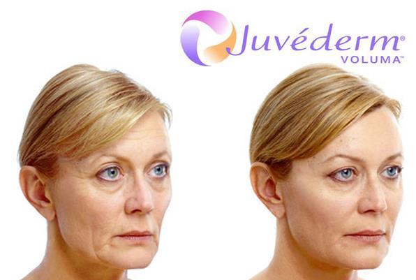 1- تزریق ژل صورت ولوما از ژوویدرم Voluma چه چیز را درمان می کند؟