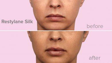 Photo of درباره تزریق ژل لب سیلک Silk از فیلر رستیلن و اثرات آن بدانید