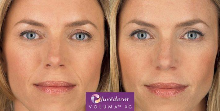تزریق ژل صورت ولوما از ژوویدرم