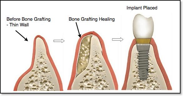 آیا استخوان شما به اندازه کافی برای نگهداشتن دندان در جای خود قوی هست.