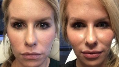 تزریق ژل گونه لیف رستیلن برای پرکردن گونه و کاهش خطوط صورت