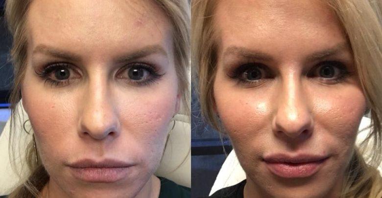 تصویر تزریق ژل گونه لیف رستیلن برای پرکردن گونه و کاهش خطوط صورت