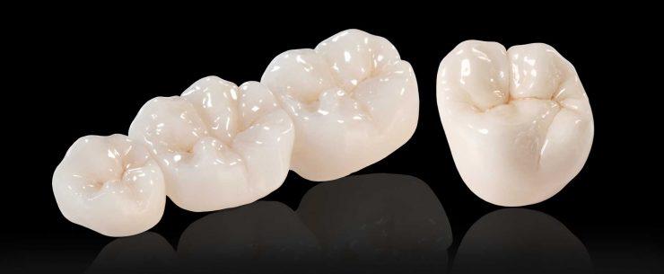 تاج دندان ایمپلنت با جنس زیرکونیا