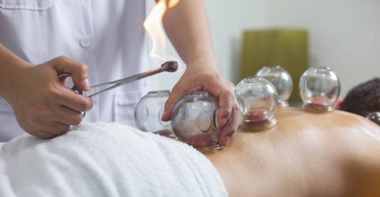 بادکش درمانی یک روشی طب چینی برای درمانی بیماری و درد