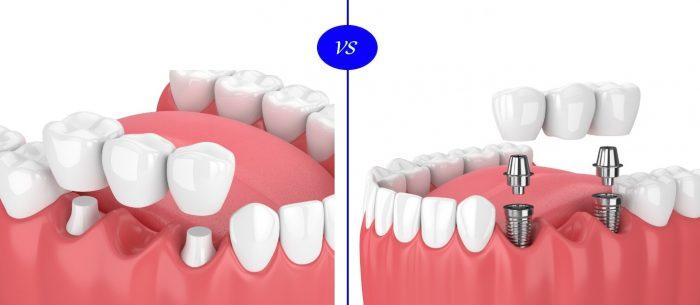 درمان جایگزین بریج دندان با ایمپلنت دندانی