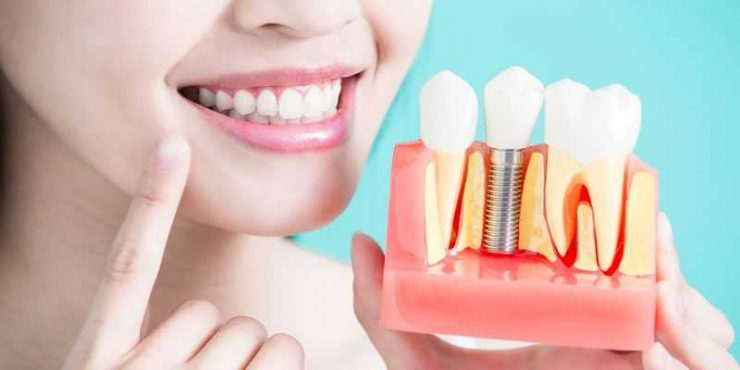 پرسیدن سوال از دندانپزشک جراح ایمپلنت دندان