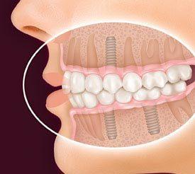 کاشت دندان با ایمپلنت دائمی