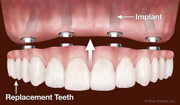 (می توانید برای کاهش هزینه به جای ایمپلنت تمام دندان ها از روش دندان مصنوعی با ایمپلنت یا روش all on four استفاده کنید)