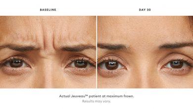 Photo of آنچه باید درباره کاربرد زیبایی تزریق بوتاکس ژیوو Jeuveau بدانید