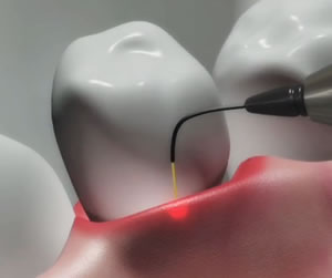 لیزر برای اتصال بهتر و جلوگیری از عفونت