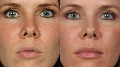 Photo of کدام نوع ژل لب برای حجم دهی لبهای شما بهتر است؟