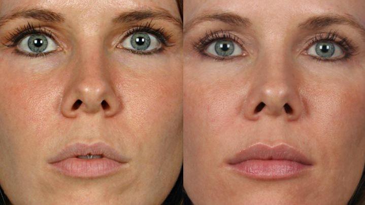 تصویر کدام نوع ژل لب برای حجم دهی لبهای شما بهتر است؟