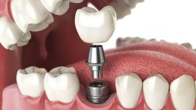 هر آنچه که باید در مورد انتخاب ایمپلنت دندان ها بدانید