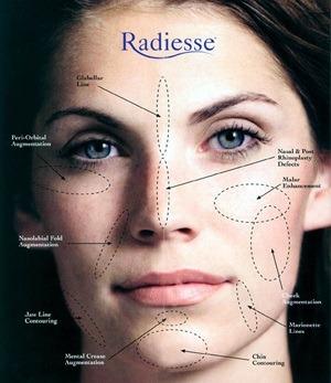 1. تفاوت تزریق ژل خط خنده و صورت رادیس ، ژوویدرم و رستیلن چیست؟