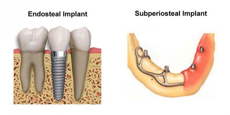 انواع ایمپلنت های دندان