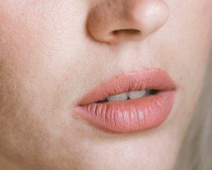 تزریق ژل لب ولبلا طی یک فرآیند 30 تا 60 دقیقه ای انجام می شود.