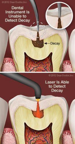 رفع پوسیدگی و تذمیم دندان ها با لیزر دندانپزشکی