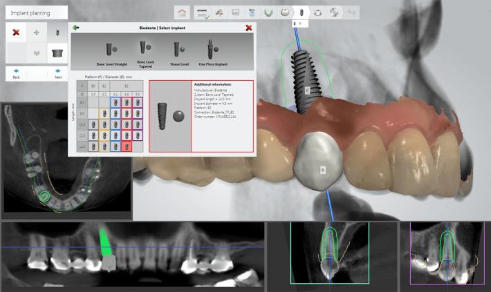 در مرحله اول، نمای سه بعدی یا مجازی سازی مجدد فک