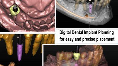 ایمپلنت های دندان دیجیتال راحت تر از روش کاشت دندان قبلی هستند