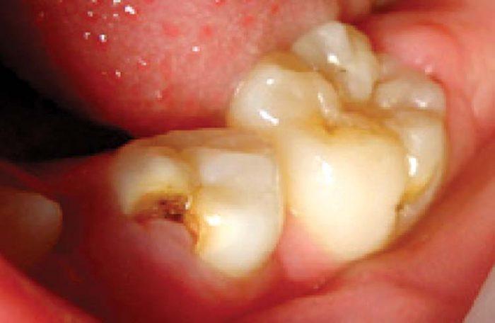 ترمیم دندان با لیزر دندانپزشکی