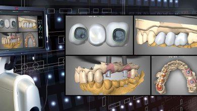 Photo of ایمپلنت دیجیتالی دندان با روش بدون جراحی و سیستم cad-cam چیست؟