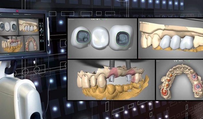 جراحی هدایت شده و مزایای آن برای ایمپلنت دندان دیجیتال چیست؟