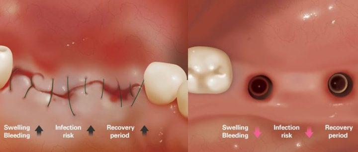 جراحی سنتی و ایمپلنت دیجیتال تهران و روش پانچ ایمپلنت دندان