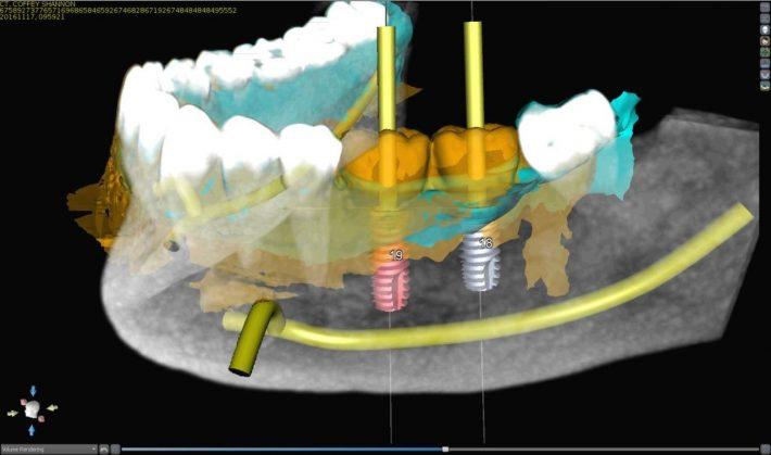 چگونه ایمپلنت دندان دیجیتال امکان سریع و با کیفیت تر را فراهم کرده است