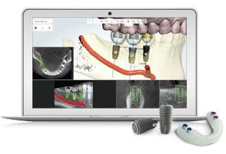 جراحی ایمپلنت دیجیتال چیست؟