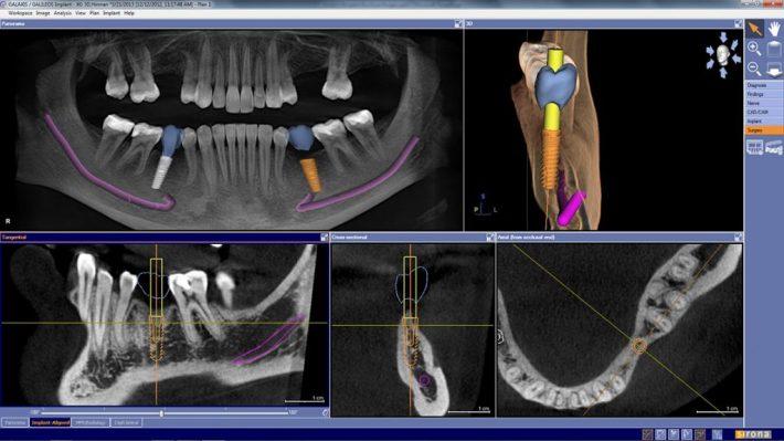 تکنولوژی تصویربرداری دو و سه بعدی برای ایمپلنت دندان دیجیتال