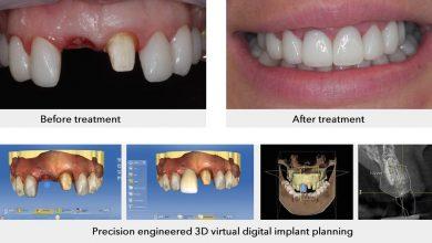 Photo of هزینه ایمپلنت دیجیتال دندان، آیا این هزینه ها واقعا زیاده یا می ارزد؟