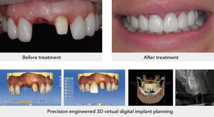 هزینه ایمپلنت دندان دیجیتال، آیا این هزینه ها واقعا زیاده یا می ارزد؟