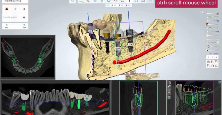 جراحی موک در ایمپلنت دیجیتال چه کاربردی دارد؟