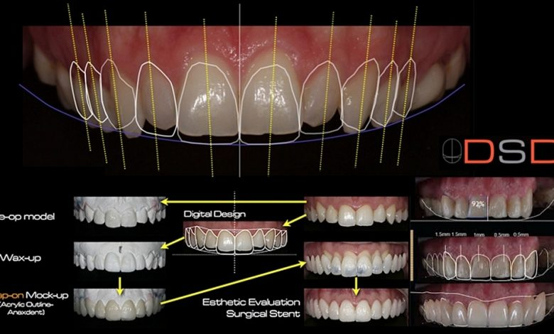 طراحی لبخند دیجیتال با لمینت دندان