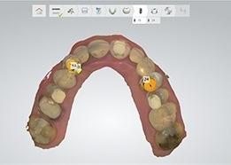 تهیه یک طرح جراحی ایمپلنت دیجیتال