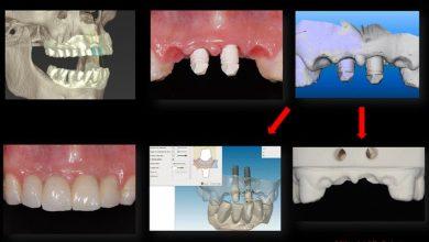 مراحل انجام ایمپلنت دندان دیجیتال در یک مکان